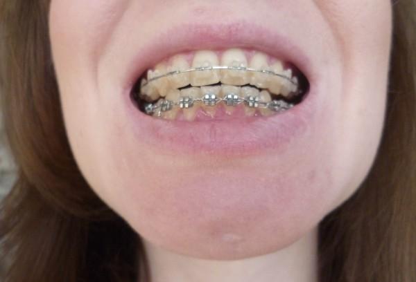 ноют зубы после отбеливания